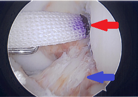 The Artelon Flexband Graft (red arrow) is used to strengthen and protect the ACL (blue arrow)