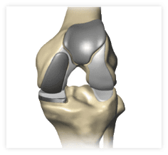 It is also possible to perform a bicompartmental partial knee replacement if two areas are damaged