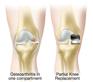 Partial knee replacement resurfaces only the damaged compartment of the knee while preserving the remaining healthy anatomy