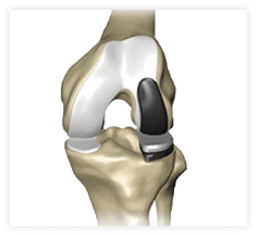 A unicompartmental partial knee replacement may be used when only one compartment area of the joint is damaged